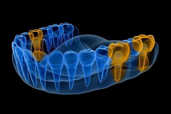 Fogbeültetés Implantátum