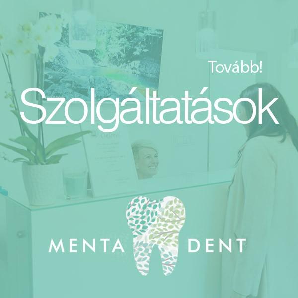 Menta Dent fogászat és gyerek fogászat